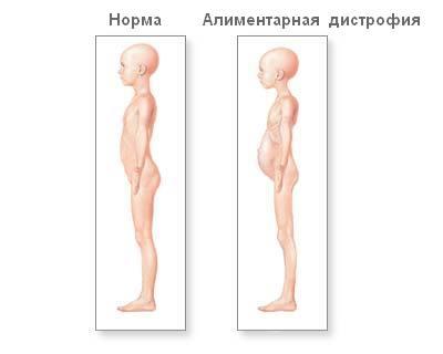 Аліментарна дистрофія і норма
