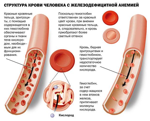 кров людини при анемії