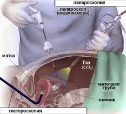 Вагітність после лапароскопії