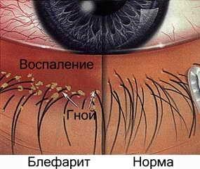 причина зуда глаз - демодекс