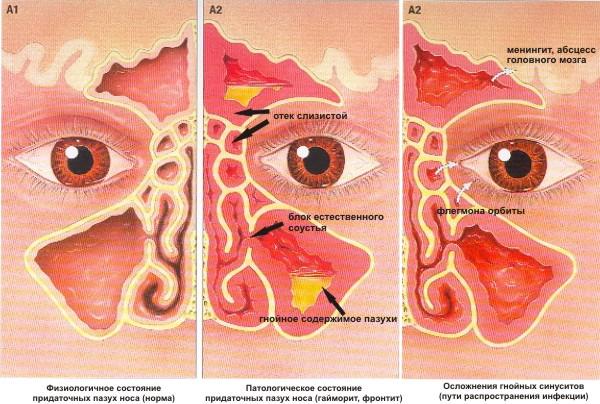 Что делать если из носа воняет гайморит