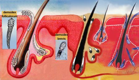 розвиток очних кліщів Демодекс