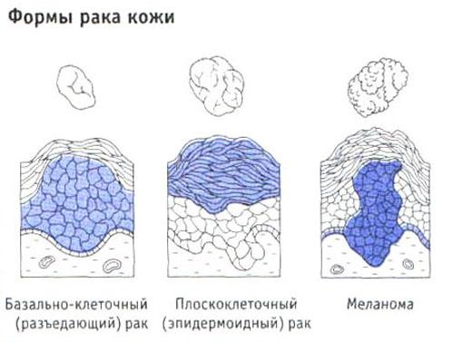 форми раку шкіри