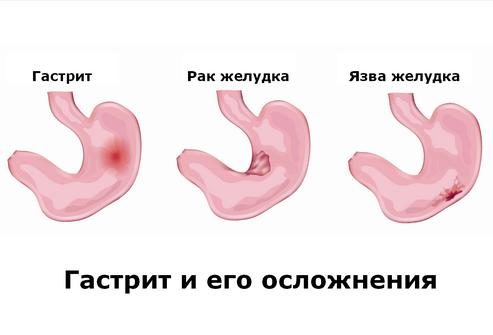 ускладнення гастриту