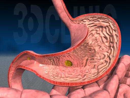симптомы гастрита с пониженной кислотностью желудка