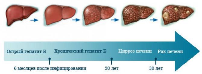 сумма гепатит и рак одно и тоже дворы (жилая