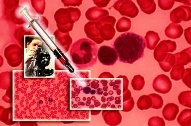 густа кров і вагітність