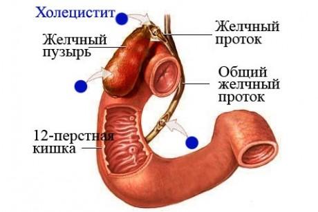 холецистит - причина болю живота