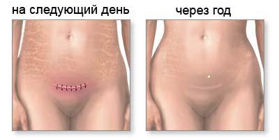 Як швидко гоїться шов після кесаревого розтину