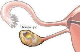 вагітність после кісті жовтого тела