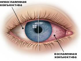 конъюктивит - причина зуда в глазах