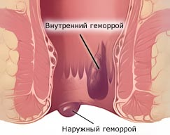 лікування геморою