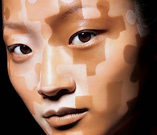 зміна пігментації шкіри
