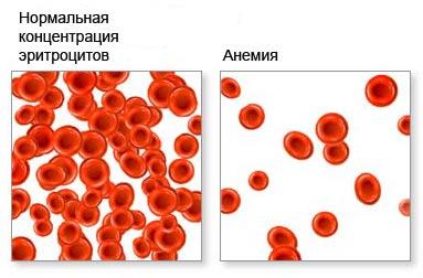 Нормальна концентрація еритроцитів та анемія