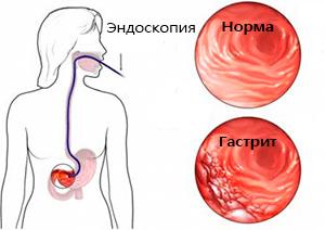 шлунок в нормі і гастрит з підвищеною кислотністю
