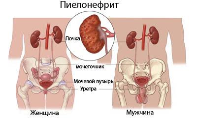 Хронічний пієлонефрит у чоловіків і жінок