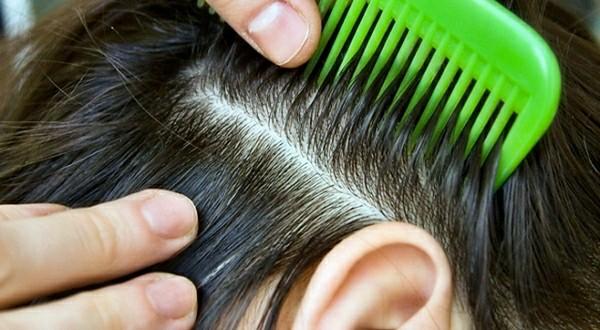 почему чешется кожа головы и стресс