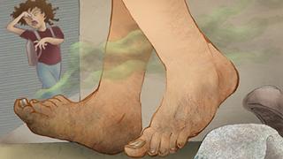 підвищена пітливість ніг - поради