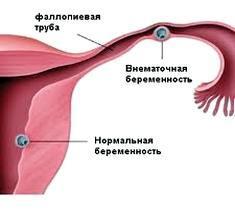 позаматкова вагітність причини