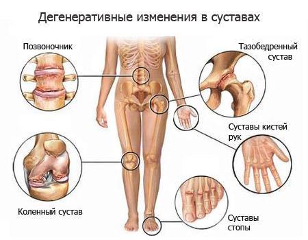 Симптоми захворювань суглобів та їх профілактика