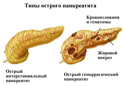 типи гострого панкреатиту і різі в животі
