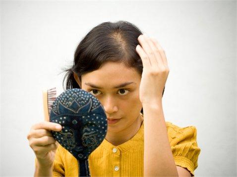 тріхотілломанія і випадання волосся