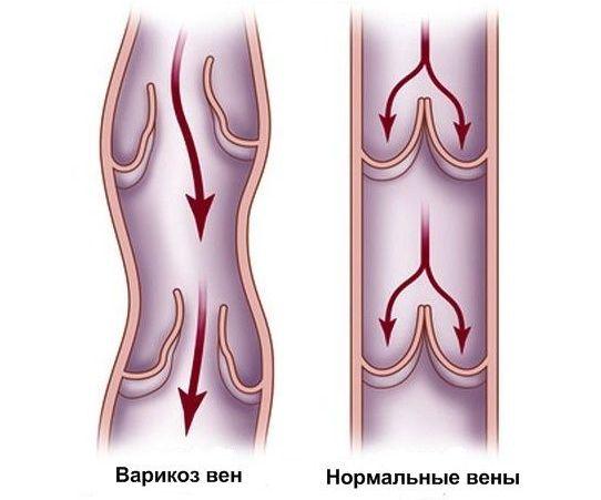 симптоми варикозу у вагітної