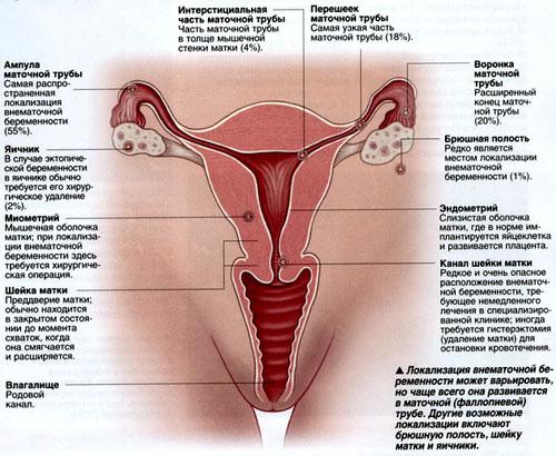 Поняття позаматкова вагітність