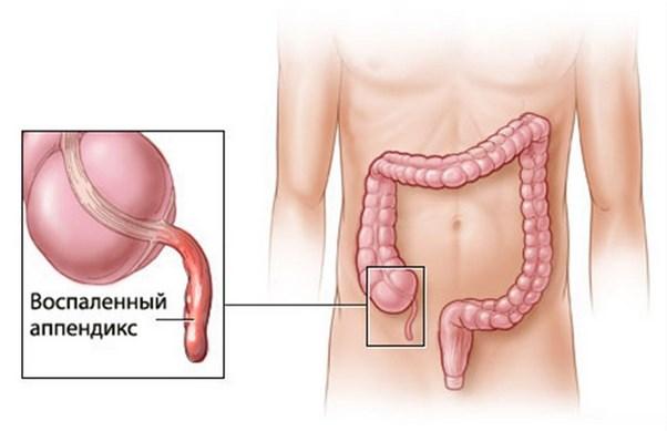 запалений апендикс і різі в шлунку